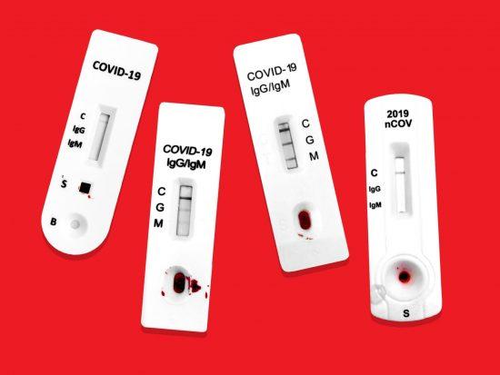 COVID-19 Antibody Tests