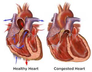 healthy heart vs congested heart
