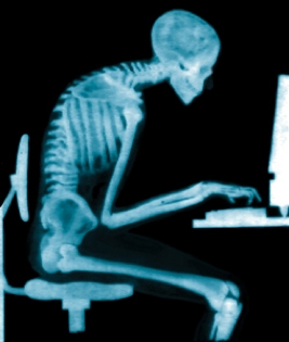 X-ray image of skeleton in an office chair hunched over at a computer.