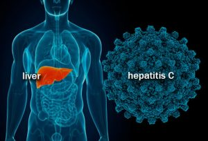 Outline of a man's body with the liver highlighted, next to a hepatitis c viral particle