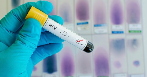 Gloved hand holds a vial that reads HCV