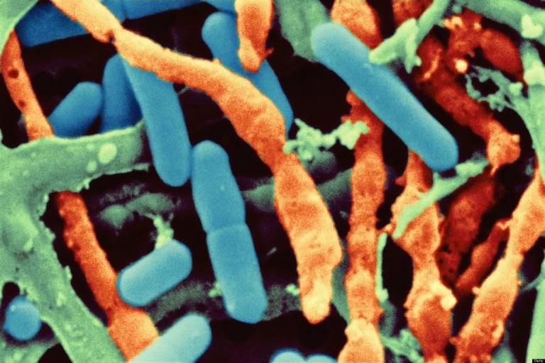 Listeria monocytogenes, SEM, Color Enhanced
